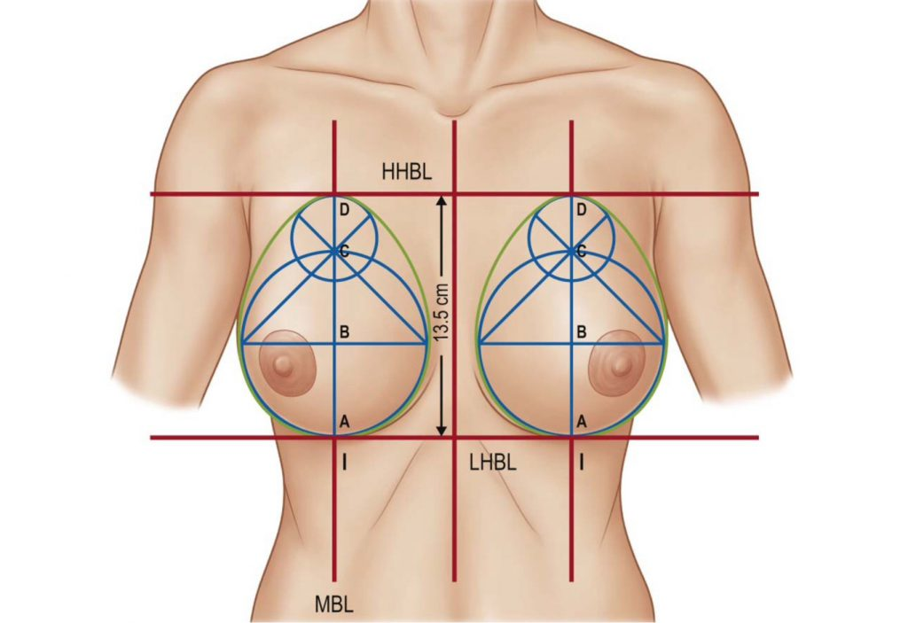 Ideal Breast