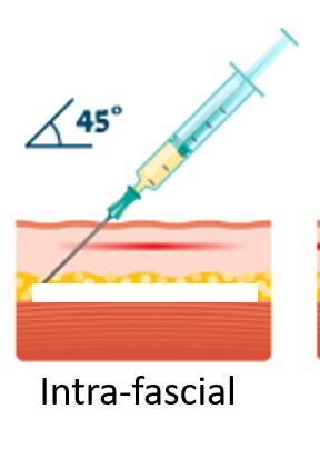 Intra-fascial