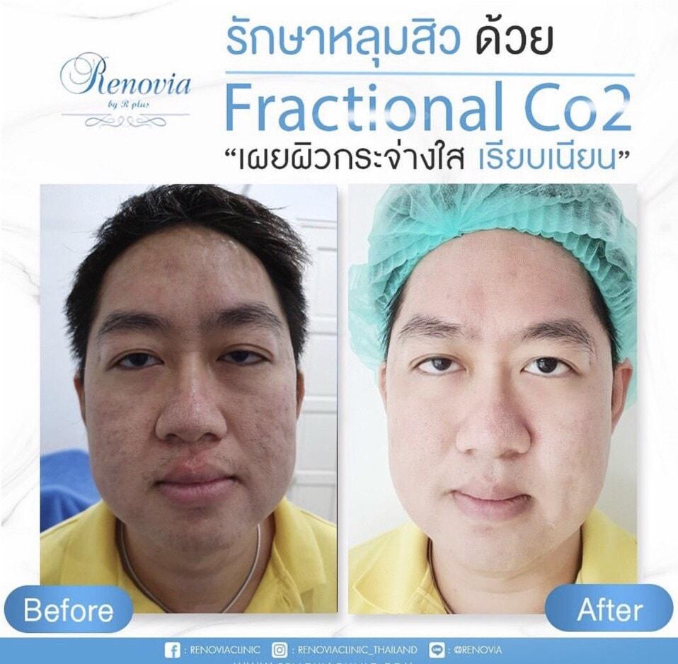 acne scar korat 5