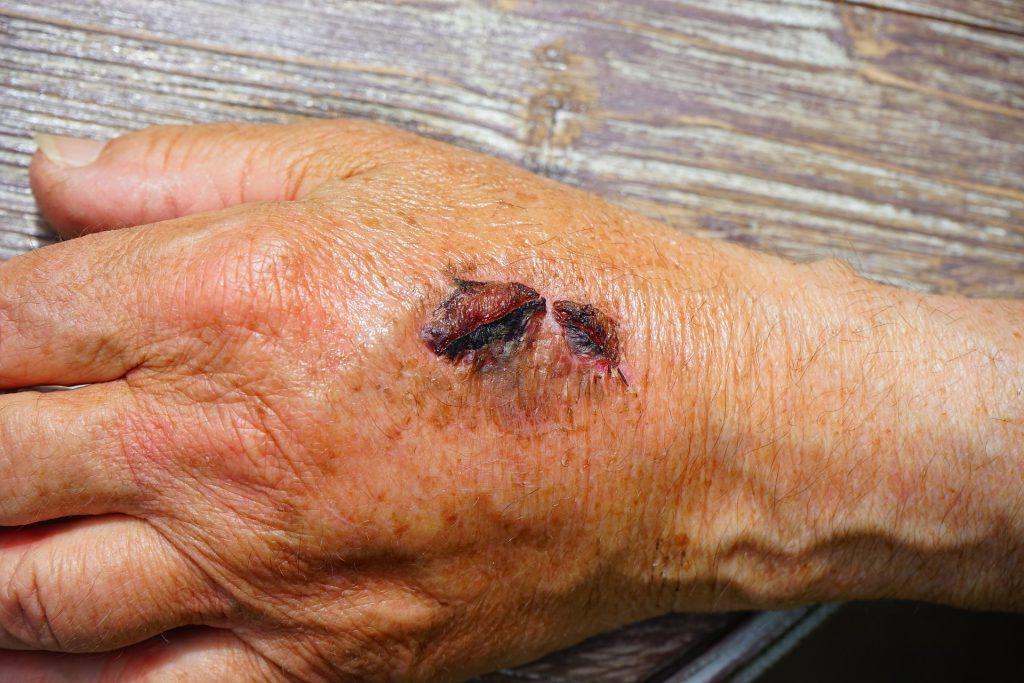 chromic wound