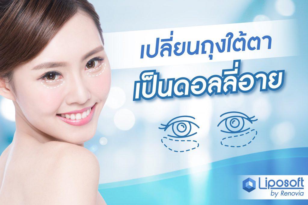 eye surgery ad