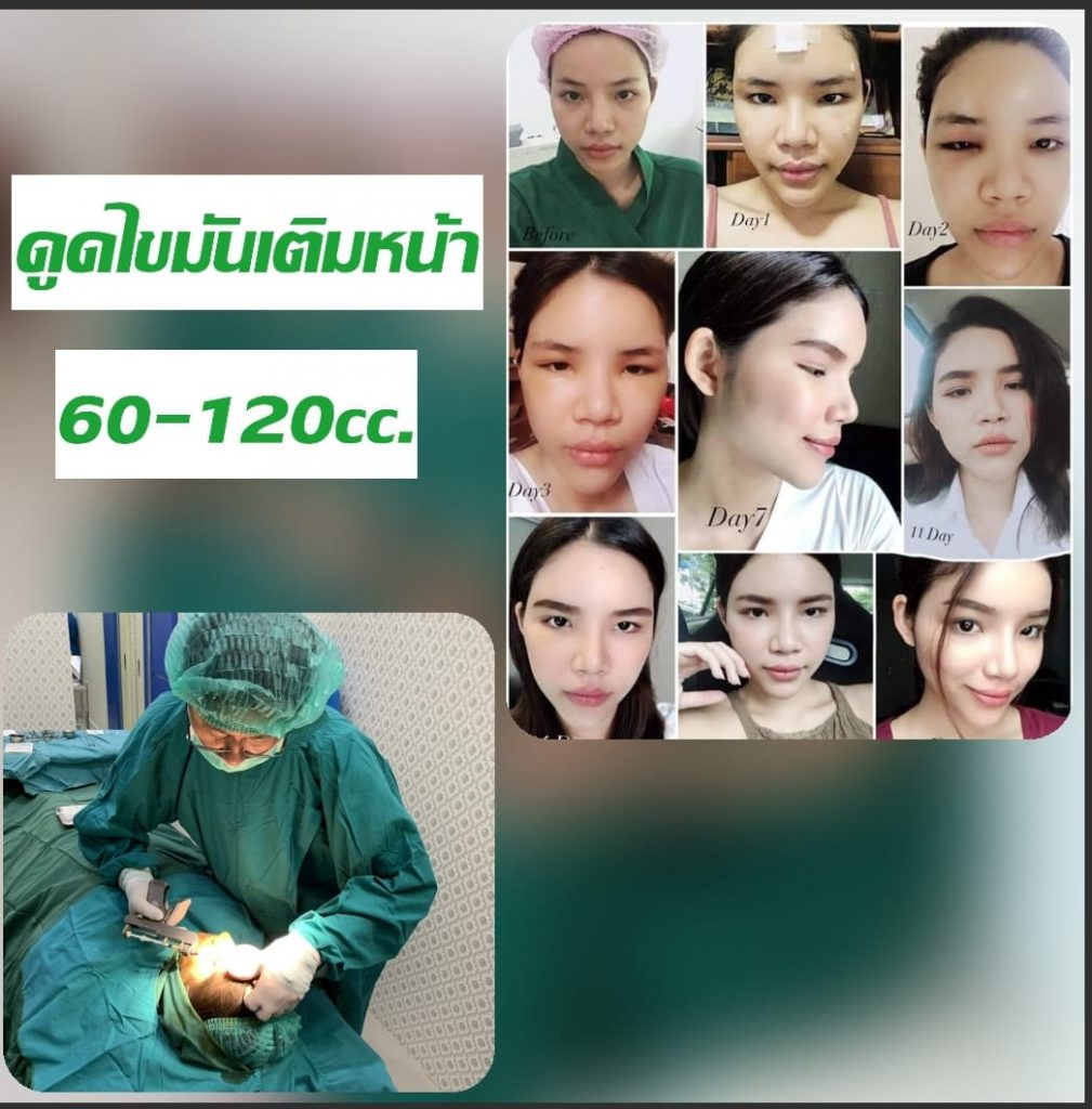 fat transfer to face 5