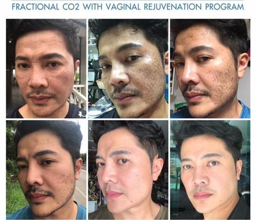 fractional CO2 acne scar korat