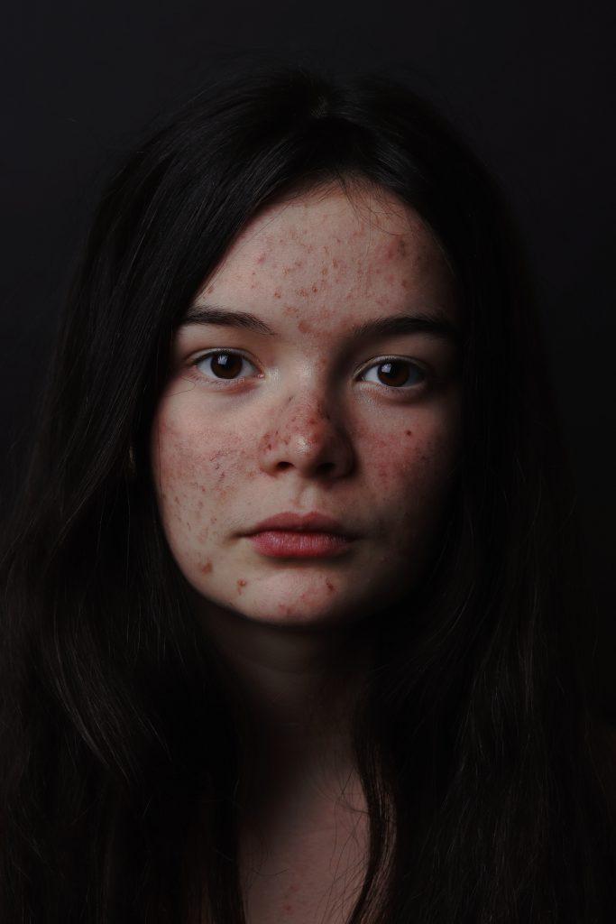 Acne Depression