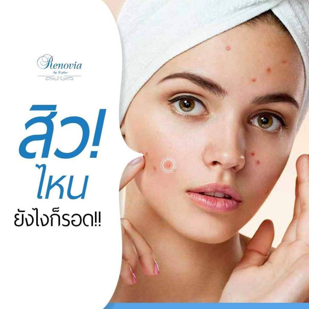 acne pro 9